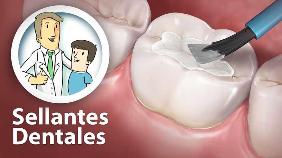 Sellantes Dentales.